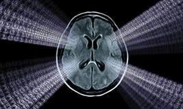 Mribeeld van hersenen Royalty-vrije Stock Afbeelding