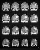 mriobrainföljd som visar tumoren Arkivfoto