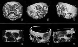 MRIs Stock Images