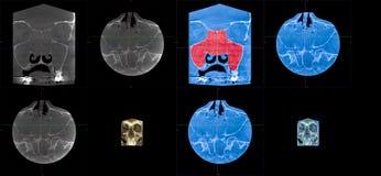 MRT, χρόνιο rusinusitis polyposis αλλεργικής προέλευσης, συμπληρώνει συνολικά τη μετωπική πλήρωση κόλπων Στοκ Εικόνες