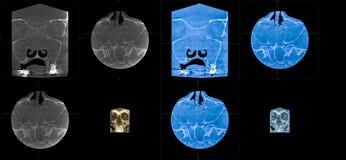 MRT, cudzoziemski ciało prawy maxillary sinus obraz royalty free