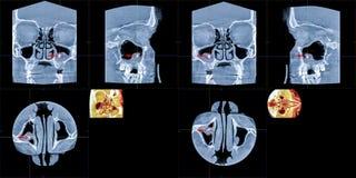 MRT utländsk kropp av den högra maxillary bihålan arkivfoton
