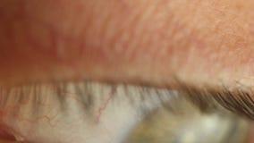 Mrugania m?ski oko w g?r? patrze? woko?o Czerwona arteria na ga?ce ocznej makro- Ucze? reakcja za?wieca? Mioz i Midriaz zbiory