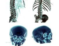 MSCT della testa e del corpo immagine stock libera da diritti