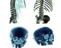 MSCT of head and body. Computed tomography of trauma patient, head and body (MSCT), inverted Royalty Free Stock Image