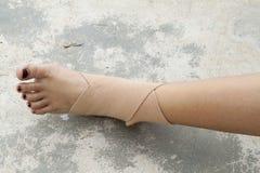 Muñeca del accidente de los primeros auxilios con el linimento Foto de archivo libre de regalías