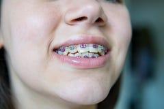 Muchacha adolescente con los apoyos que sonríe en la cámara Fotografía de archivo