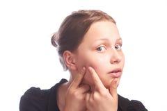 Muchacha adolescente con una piel del problema Fotografía de archivo libre de regalías