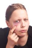 Muchacha adolescente con una piel del problema Foto de archivo