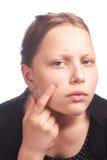 Muchacha adolescente con una piel del problema Imagen de archivo