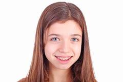 Muchacha adolescente joven hermosa con los corchetes Imágenes de archivo libres de regalías