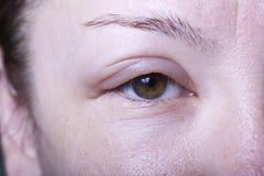 Muchacha con el edema alergénico Imagen de archivo