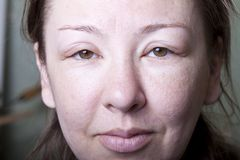 Muchacha con el edema alergénico Fotos de archivo libres de regalías