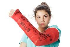 Muchacha con el vendaje del yeso Fotos de archivo