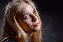 Muchacha con la piel granujienta Fotos de archivo