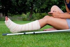 Muchacha con la pierna en la charla del yeso Imagen de archivo libre de regalías
