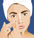 Muchacha con las espinillas, acné, limpiamiento facial, adolescencia Stock de ilustración