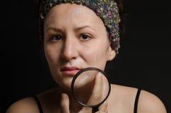 Muchacha con una cara granujienta que sostiene la lupa Muchacha caucásica del concepto del cuidado de piel de la mujer en fondo n Foto de archivo