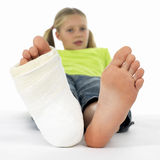 Muchacha con una pierna quebrada Foto de archivo libre de regalías