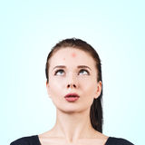Muchacha confusa con acné en su frente Fotografía de archivo libre de regalías