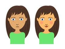 Muchacha del acné Imagen de archivo libre de regalías