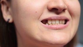Muchacha que muestra dientes y un agujero después de la extracción del diente metrajes