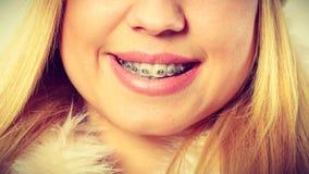 Muchacha sonriente con el primer dental de los apoyos Imágenes de archivo libres de regalías