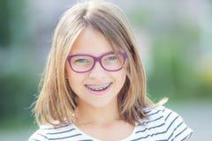 Muchacha sonriente feliz con los apoyos y los vidrios dentales Ca lindo joven Foto de archivo libre de regalías