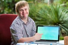 Muchacho amistoso con Síndrome de Down que señala en la pantalla en blanco del ordenador portátil Fotografía de archivo