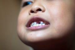 Muchacho asiático con los dientes quebrados Imágenes de archivo libres de regalías