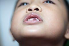 Muchacho asiático con los dientes quebrados Foto de archivo