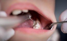 Muchacho con la boca abierta durante el tratamiento de la perforación en el dentista en clínica dental Imágenes de archivo libres de regalías