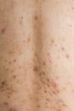 Muchacho con las cicatrices problemáticas de la piel y del acné Fotografía de archivo libre de regalías
