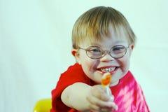 Muchacho con síndrome de las llanuras Imagen de archivo