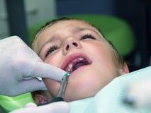 Muchacho en silla dental Imagen de archivo libre de regalías