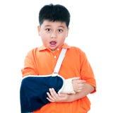 Muchacho joven con la mano fracturada con vendaje de yeso Fotos de archivo