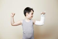 Muchacho lindo con el brazo quebrado Imagenes de archivo