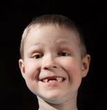 Muchacho lindo que falta algunos dientes delanteros fotografía de archivo libre de regalías