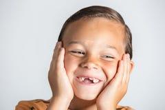 Muchacho que muestra los dientes que falta Foto de archivo libre de regalías