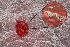 Mucosa dello stomaco con il helicobacter pylori del batterio e dell'ulcera peptica illustrazione vettoriale