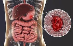 Mucosa dello stomaco con l'ulcera peptica illustrazione di stock