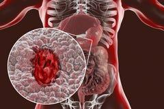 Mucosa dello stomaco con l'ulcera peptica royalty illustrazione gratis