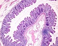 Mucosa dos dois pontos humanos imagem de stock