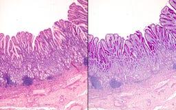 Mucosa pyloric humana imagens de stock