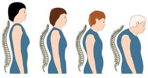 Mudança da postura com idade ilustração stock