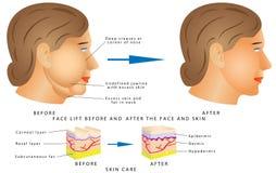 Mudanças da cara do envelhecimento Fotografia de Stock Royalty Free