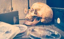 Muertos al medios vídeo y película análogos Imagenes de archivo