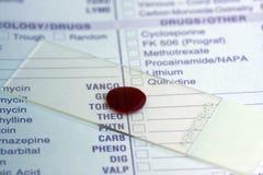 Muestra de sangre Fotos de archivo libres de regalías