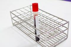 Muestra de sangre en un tubo de ensayo Vacutainer Fotos de archivo