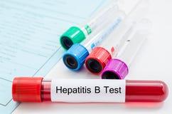 Muestra de sangre para la prueba del virus de la hepatitis B (HBV) Fotografía de archivo libre de regalías